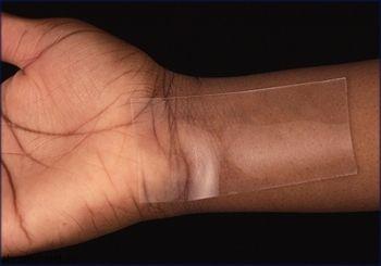 Шрамы и рубцы на коже