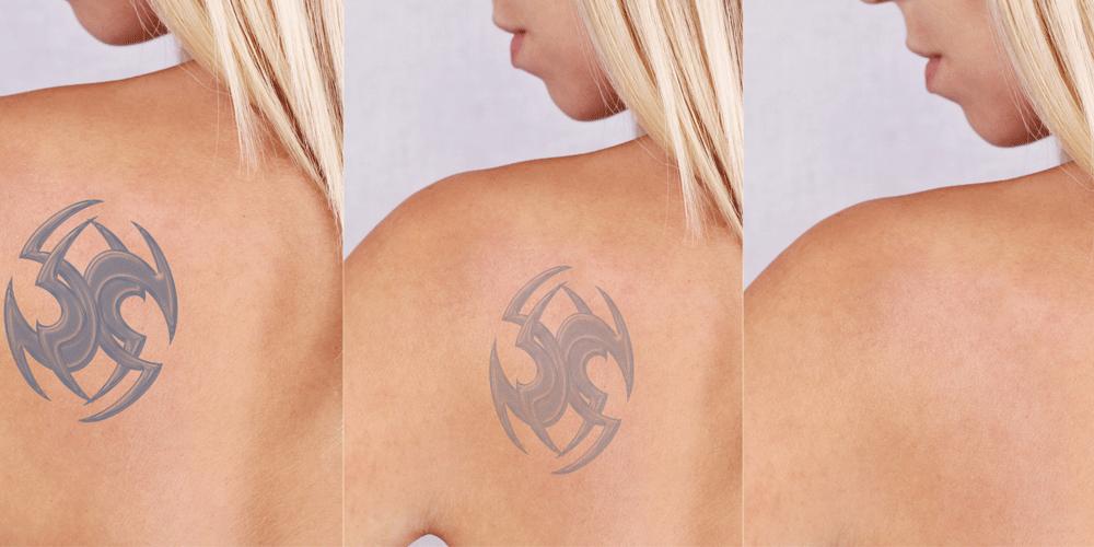 Как удалить татуировку