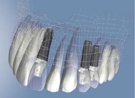 Нужно ли заменять зубные имплантаты?